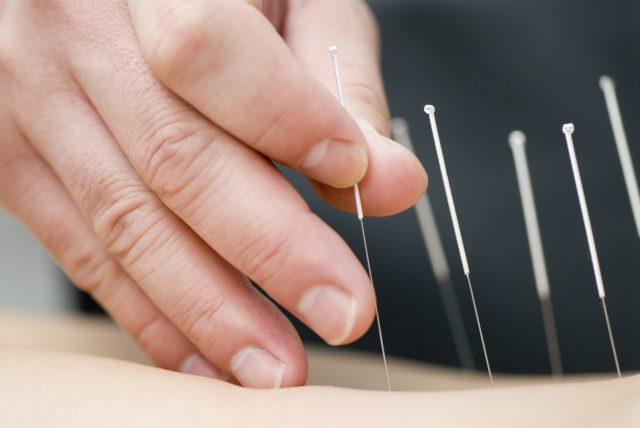 Acupuncture, research, health, benefits, Randomised clinical trials, The National Institutes, Johns Hopkins, brain, pain relief, (RCTs), back pain, neck pain, Osteoarthritis, knee pain, chronic pain, headaches, National Institutes of Health, (NIH), cancer, chemotherapy, surgery, Addiction, Menstrual, syndrome, Asthma