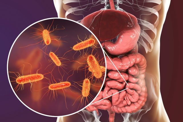 SIBO, Bacterial, IBS, gut, bloating, gas, Hashimoto's, Thyroid, Doctors, motility, stomach acid, healthy, Lactic Acid bacteria, Butyrate, Saccharomyces boulardii, Streptococcus thermophilus, Enteric Nervous System, (ENS), Brain in the Gut,
